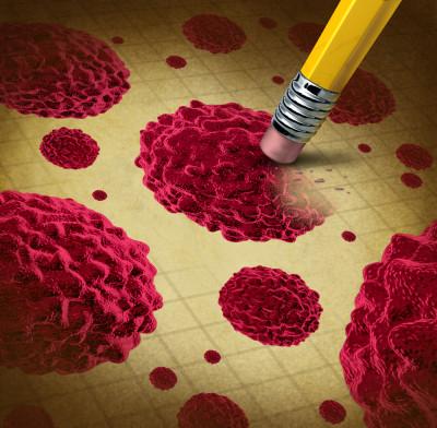 immunoglobulin-2-400x392