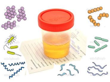 bakterii-v-moche